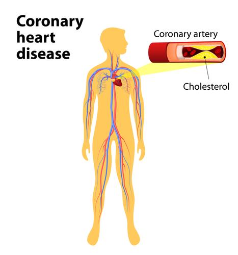 Cholesterol-Diagram