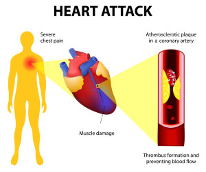 Heart-Attack-Diagram---Southeast-Texas-Cardiology---Beaumont,-TX