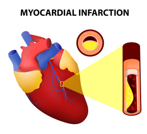 Myocardial Infarction - Southeast Texas Cardiology - Beaumont, TX