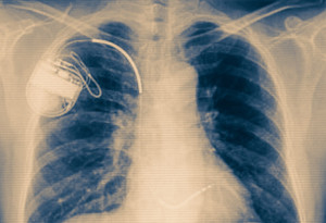Pacemaker-AICD-Implementation---Southeast-Texas-Cardiology---Beaumont,-TX